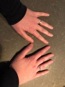Handen te kort